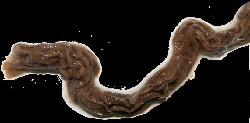 Biofilm bacterian eliminat în urma curei cu Vitamunda ColonHyperDetox