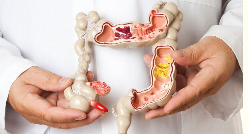 sindromul colonului iritabil - cancer de colon