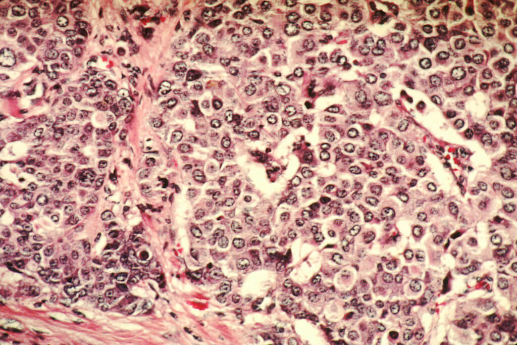 Celulele canceroase la microscop