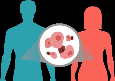 Tratamentul cancerului - cercetari despre cancer