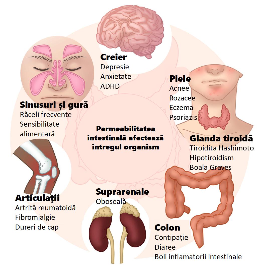 Permeabilitatea intestinală afectează întregul organism