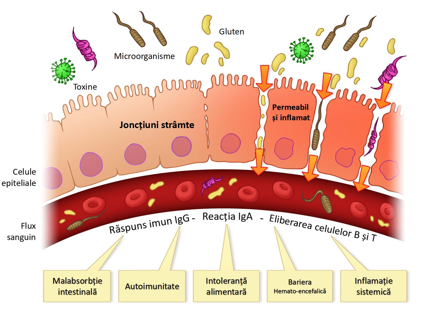 Permeabilitate și inflamație intestinală