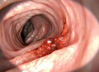 Cancerul Pulmonar Cum se depistează cauza celor mai multe decese de cancer
