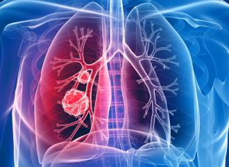 Cancerul Pulmonar: Cum se depistează cauza celor mai multe decese de cancer